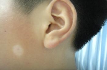 武汉有专门治白斑的医院吗?脸上的白点点是什么原因引起的