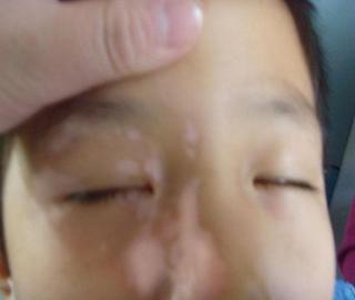 武汉孩子白癜风用什么方法治疗