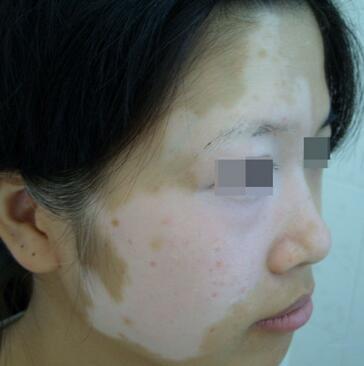 武汉白癜风医院提醒白癜风患者要坚持治疗