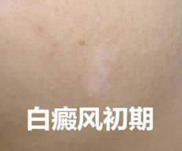 女性白癜风的治疗要怎么做有效果呢?武汉白癜风正规的医院