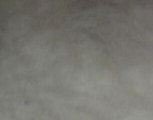 武汉看白癜风哪里好?怎样治疗白癜风防止扩散