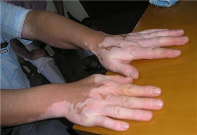 武汉治白癜风医院排名?武汉如何有效治疗手部白癜风呢?