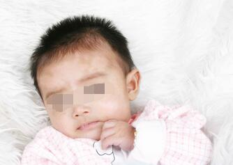 武汉儿童脸上长白癜风要做什么